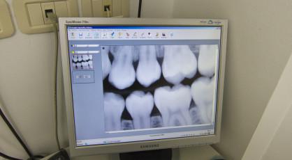 Radiografia digitale